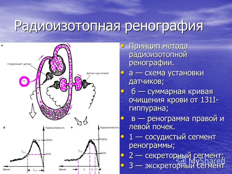 Радиоизотопная ренография Принцип метода радиоизотопной ренографии. Принцип метода радиоизотопной ренографии. а схема установки датчиков; а схема установки датчиков; б суммарная кривая очищения крови от 131I- гиппурана; б суммарная кривая очищения кр