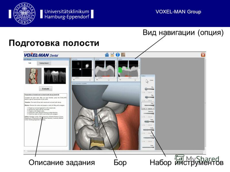 VOXEL-MAN Group Подготовка полости Описание заданияБорНабор инструментов Вид навигации (опция)