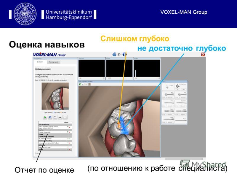 VOXEL-MAN Group Оценка навыков Отчет по оценке (по отношению к работе специалиста) Слишком глубоко не достаточно глубоко
