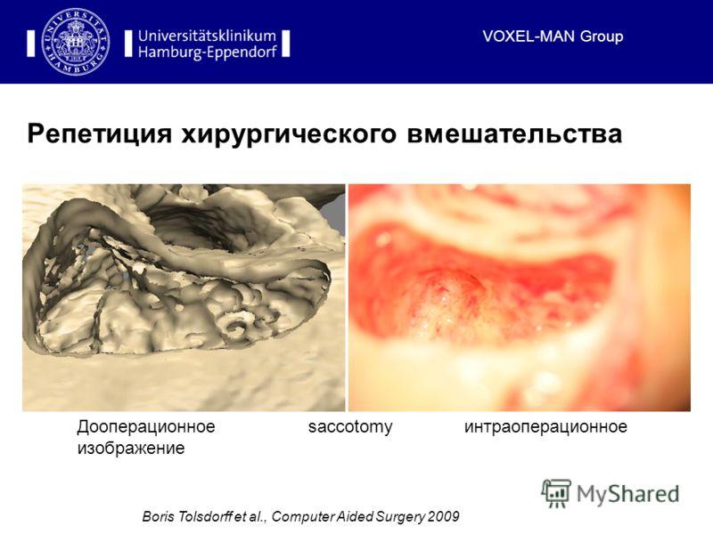 VOXEL-MAN Group Репетиция хирургического вмешательства Boris Tolsdorff et al., Computer Aided Surgery 2009 Дооперационное изображение интраоперационноеsaccotomy