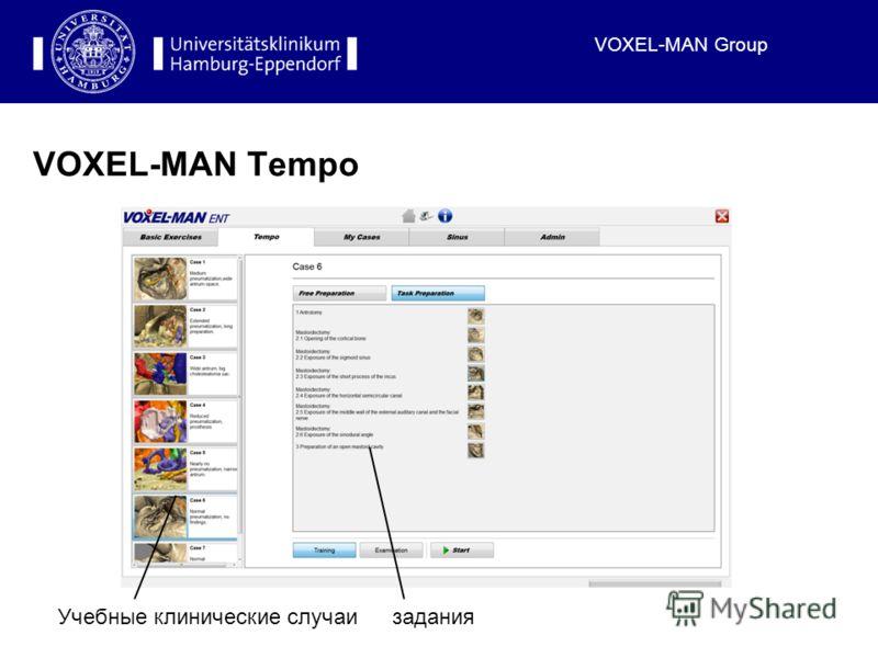 VOXEL-MAN Group VOXEL-MAN Tempo Учебные клинические случаизадания