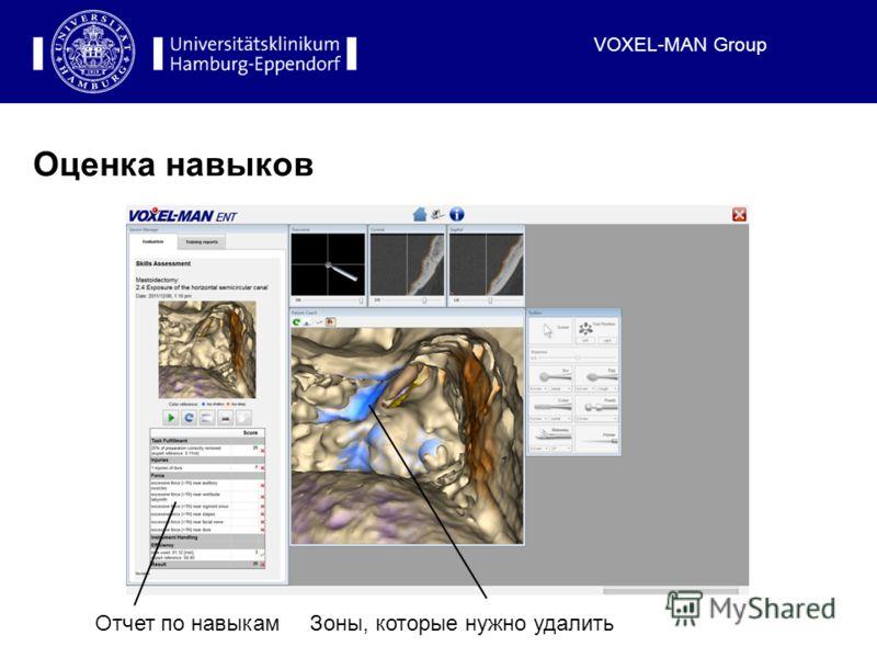 VOXEL-MAN Group Оценка навыков Отчет по навыкамЗоны, которые нужно удалить