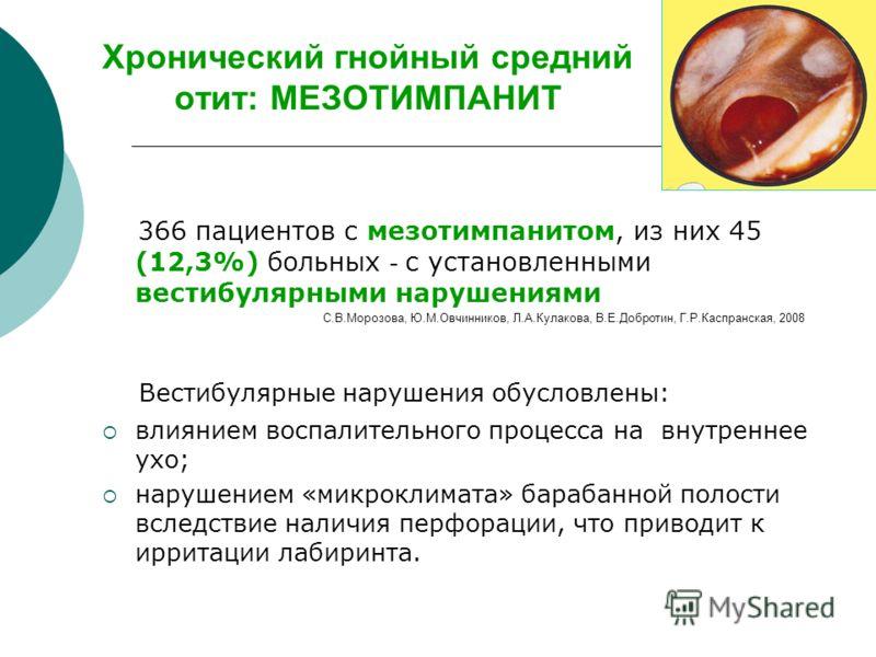Хронический гнойный средний отит: МЕЗОТИМПАНИТ 366 пациентов с мезотимпанитом, из них 45 (12,3%) больных - с установленными вестибулярными нарушениями С.В.Морозова, Ю.М.Овчинников, Л.А.Кулакова, В.Е.Добротин, Г.Р.Каспранская, 2008 Вестибулярные наруш