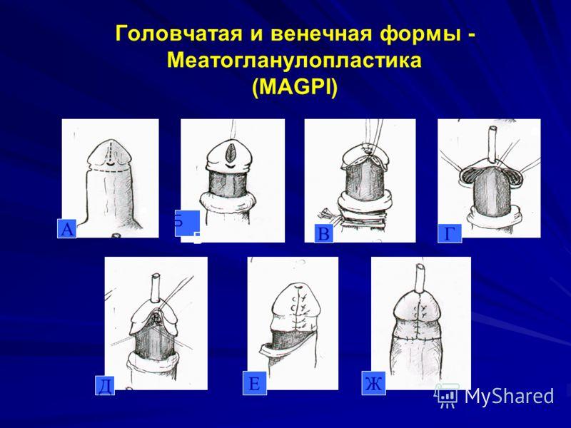 Головчатая и венечная формы - Меатогланулопластика (МAGPI) А Б ВГ Д ЕЖ