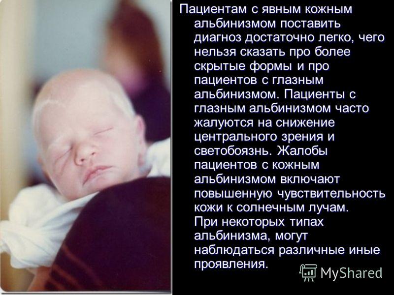 Пациентам с явным кожным альбинизмом поставить диагноз достаточно легко, чего нельзя сказать про более скрытые формы и про пациентов с глазным альбинизмом. Пациенты с глазным альбинизмом часто жалуются на снижение центрального зрения и светобоязнь. Ж