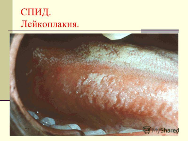 СПИД. Лейкоплакия.
