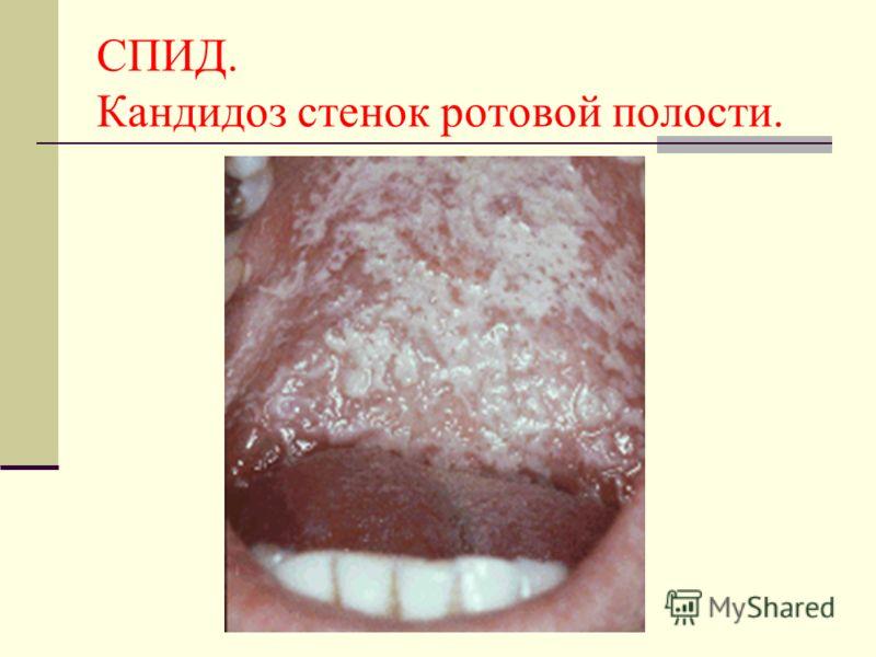 СПИД. Кандидоз стенок ротовой полости.