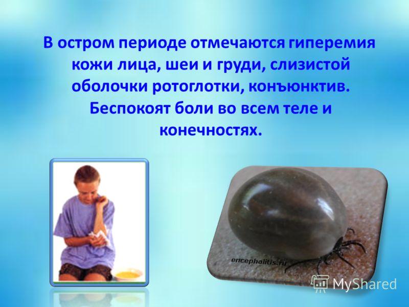 В остром периоде отмечаются гиперемия кожи лица, шеи и груди, слизистой оболочки ротоглотки, конъюнктив. Беспокоят боли во всем теле и конечностях.