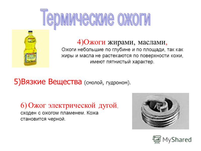 4)Ожоги жирами, маслами, Ожоги небольшие по глубине и по площади, так как жиры и масла не растекаются по поверхности кожи, имеют пятнистый характер. 6) Ожог электрической дугой, сходен с ожогом пламенем. Кожа становится черной. 5)Вязкие Вещества (смо