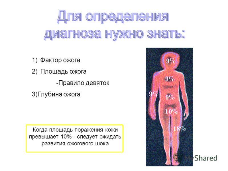 1)Фактор ожога 2)Площадь ожога -Правило девяток 3)Глубина ожога Когда площадь поражения кожи превышает 10% - следует ожидать развития ожогового шока