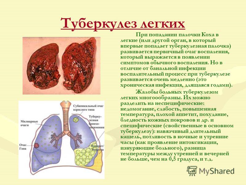 расчёта мощности туберкулез все про болезнь ящик сделан старого