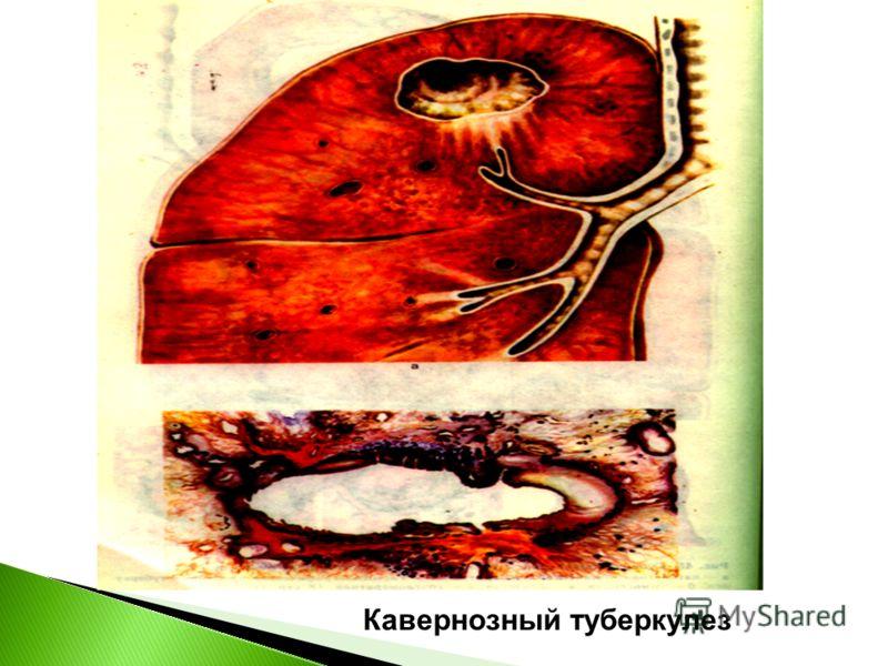 Кавернозный туберкулез