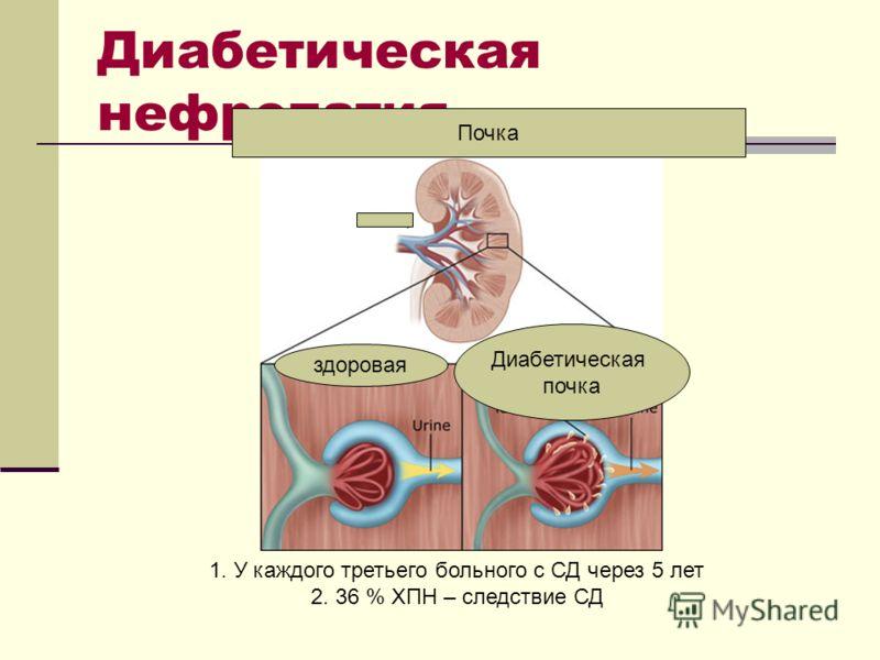 Диабетическая нефропатия 1. У каждого третьего больного с СД через 5 лет 2. 36 % ХПН – следствие СД Почка здоровая Диабетическая почка