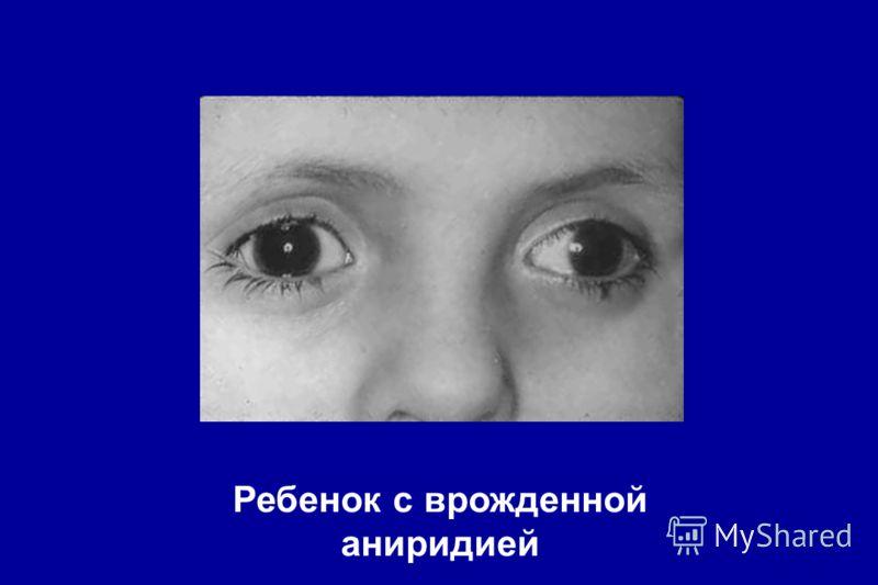 Ребенок с врожденной аниридией