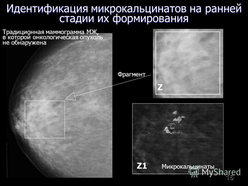 16 Идентификация микрокальцинатов на ранней стадии их формирования Традиционная маммограмма МЖ, в которой онкологическая опухоль не обнаружена Фрагмент Z1 Микрокальцинаты Z
