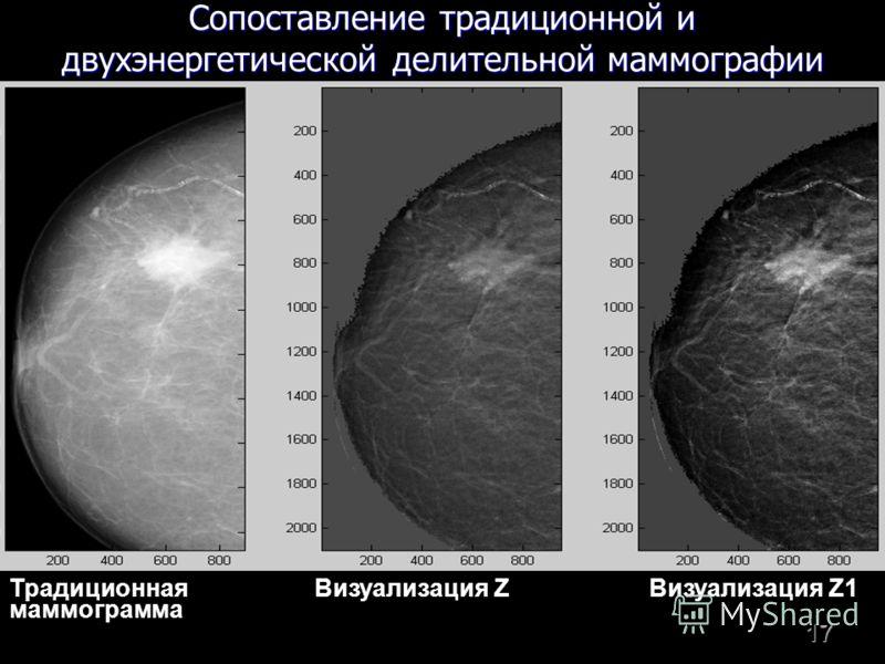 17 Традиционная Визуализация Z Визуализация Z1 маммограмма Сопоставление традиционной и двухэнергетической делительной маммографии