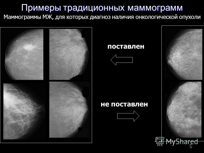 6 Примеры традиционных маммограмм поставлен не поставлен Маммограммы МЖ, для которых диагноз наличия онкологической опухоли