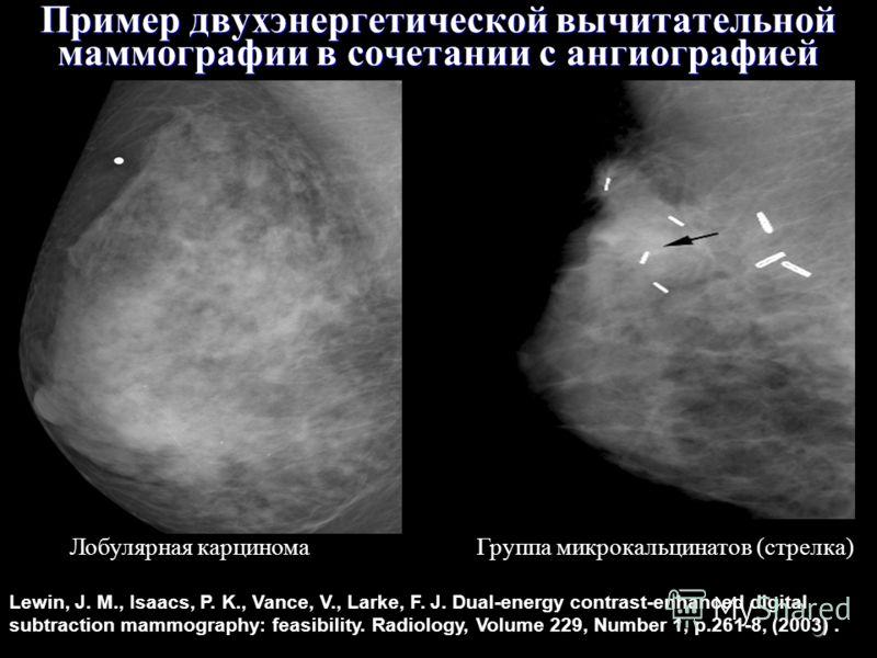 9 Пример двухэнергетической вычитательной маммографии в сочетании с ангиографией Лобулярная карциномаГруппа микрокальцинатов (стрелка) Lewin, J. M., Isaacs, P. K., Vance, V., Larke, F. J. Dual-energy contrast-enhanced digital subtraction mammography: