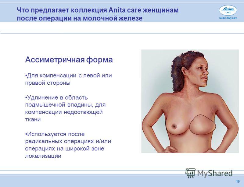 19 Что предлагает коллекция Anita care женщинам после операции на молочной железе Ассиметричная форма Для компенсации с левой или правой стороны Удлинение в область подмышечной впадины, для компенсации недостающей ткани Используется после радикальных