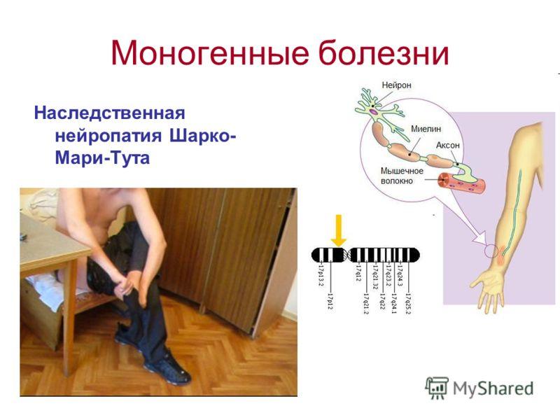 Моногенные болезни Наследственная нейропатия Шарко- Мари-Тута