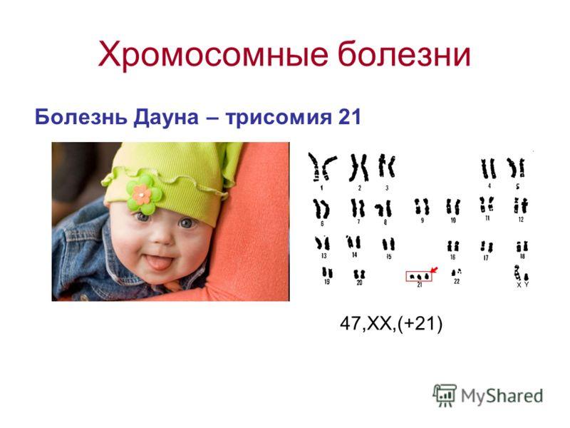 Хромосомные болезни Болезнь Дауна – трисомия 21 47,ХХ,(+21)