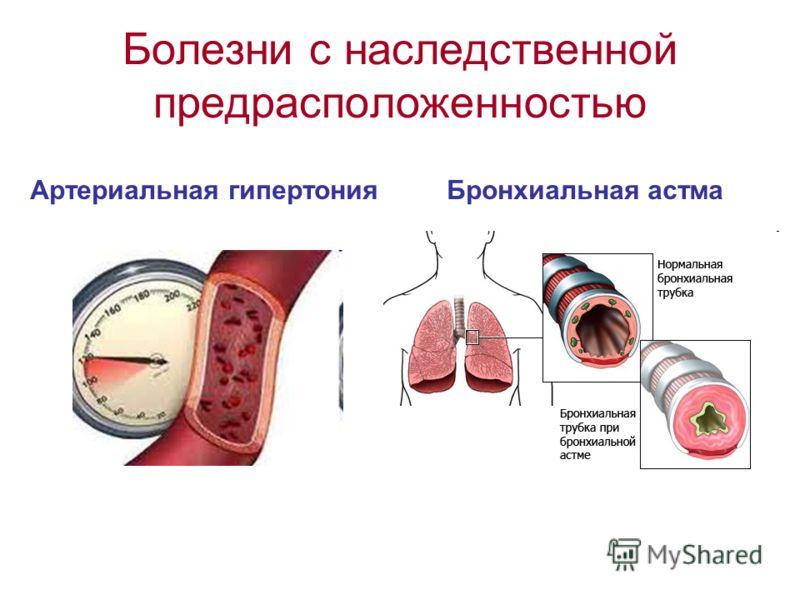 Болезни с наследственной предрасположенностью Артериальная гипертония Бронхиальная астма
