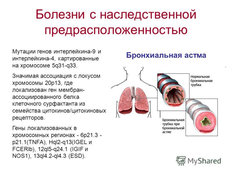 Болезни с наследственной предрасположенностью Бронхиальная астма Мутации генов интерлейкина-9 и интерлейкина-4, картированные на хромосоме 5q31-q33. Значимая ассоциация с локусом хромосомы 20р13, где локализован ген мембран- ассоциированного белка кл