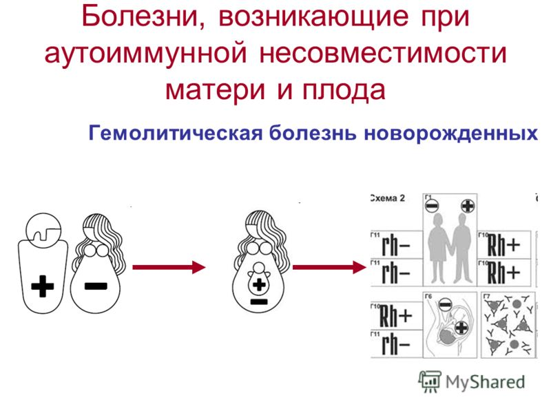 Болезни, возникающие при аутоиммунной несовместимости матери и плода Гемолитическая болезнь новорожденных