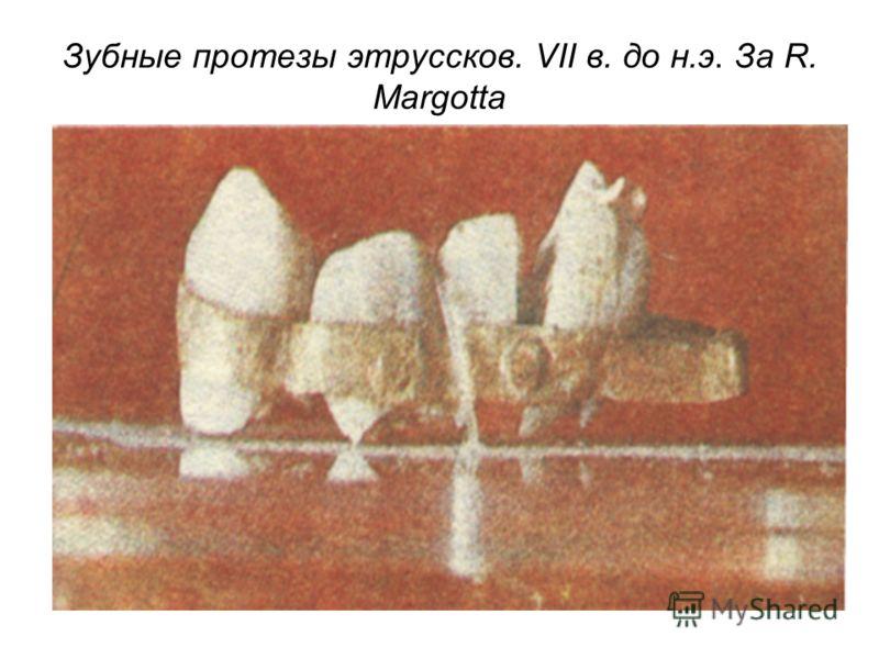 Зубные протезы этруссков. VII в. до н.э. За R. Margotta