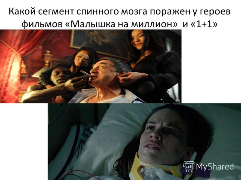 Какой сегмент спинного мозга поражен у героев фильмов «Малышка на миллион» и «1+1»