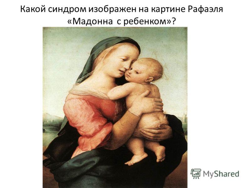 Какой синдром изображен на картине Рафаэля «Мадонна с ребенком»?