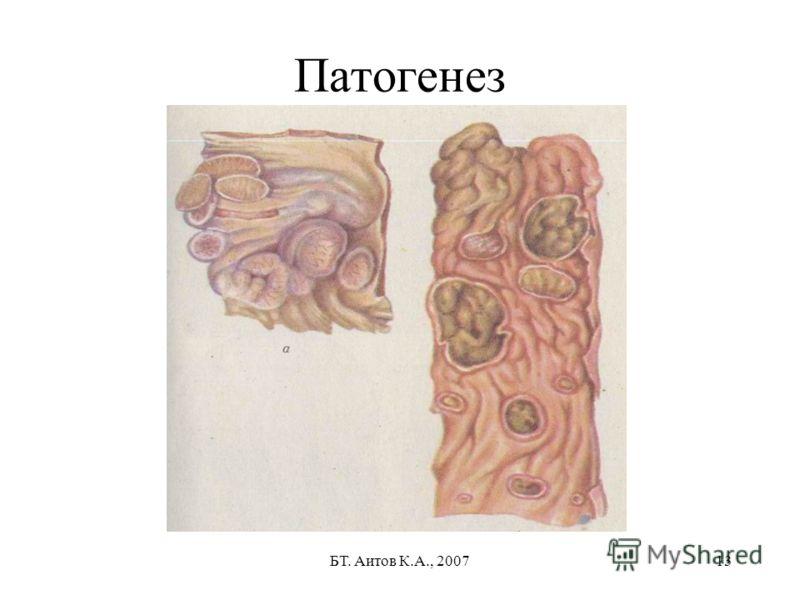 БТ. Аитов К.А., 200713 Патогенез
