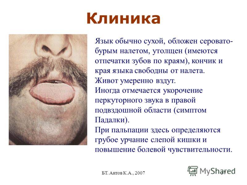 БТ. Аитов К.А., 200737 Клиника Язык обычно сухой, обложен серовато- бурым налетом, утолщен (имеются отпечатки зубов по краям), кончик и края языка свободны от налета. Живот умеренно вздут. Иногда отмечается укорочение перкуторного звука в правой подв