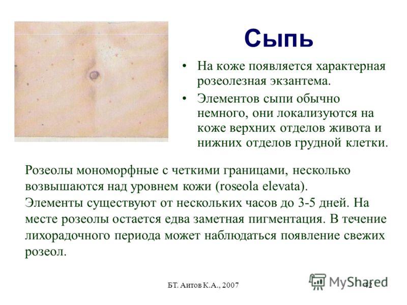БТ. Аитов К.А., 200742 Сыпь На коже появляется характерная розеолезная экзантема. Элементов сыпи обычно немного, они локализуются на коже верхних отделов живота и нижних отделов грудной клетки. Розеолы мономорфные с четкими границами, несколько возвы