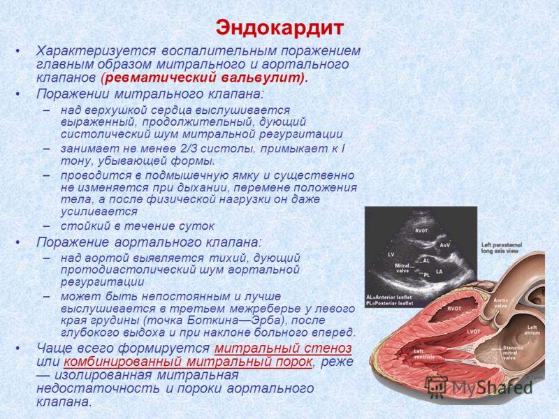 Эндокардит Характеризуется воспалительным поражением главным образом митрального и аортального клапанов (ревматический вальвулит). Поражении митрального клапана: –над верхушкой сердца выслушивается выраженный, продолжительный, дующий систолический шу