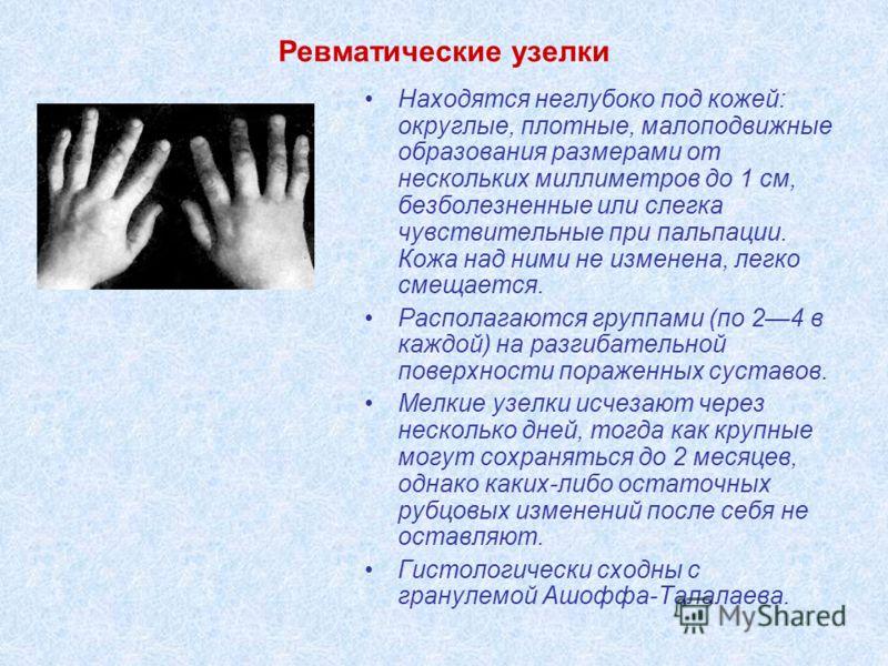 Ревматические узелки Находятся неглубоко под кожей: округлые, плотные, малоподвижные образования размерами от нескольких миллиметров до 1 см, безболезненные или слегка чувствительные при пальпации. Кожа над ними не изменена, легко смещается. Располаг