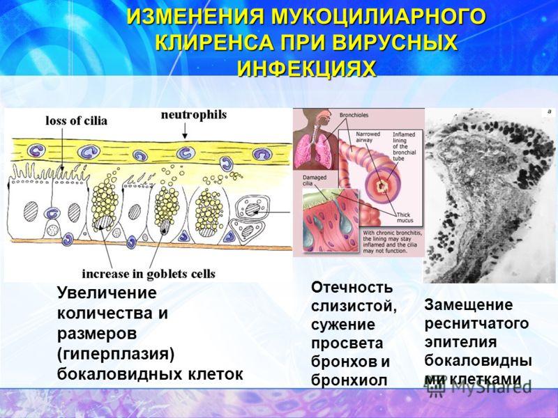 ИЗМЕНЕНИЯ МУКОЦИЛИАРНОГО КЛИРЕНСА ПРИ ВИРУСНЫХ ИНФЕКЦИЯХ Замещение реснитчатого эпителия бокаловидны ми клетками Увеличение количества и размеров (гиперплазия) бокаловидных клеток; Отечность слизистой, сужение просвета бронхов и бронхиол