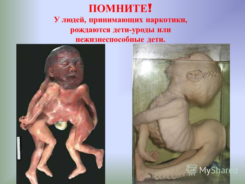 ПОМНИТЕ ! У людей, принимающих наркотики, рождаются дети-уроды или нежизнеспособные дети.