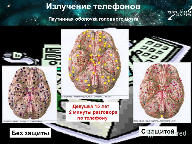 Излучение телефонов Паутинная оболочка головного мозга Без защиты С защитой Девушка 15 лет 2 минуты разговора по телефону