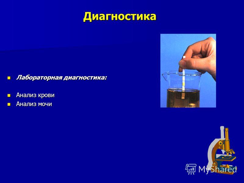 Диагностика Лабораторная диагностика: Лабораторная диагностика: Анализ крови Анализ крови Анализ мочи Анализ мочи