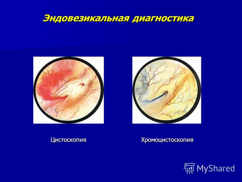 Эндовезикальная диагностика Цистоскопия Хромоцистоскопия Цистоскопия Хромоцистоскопия
