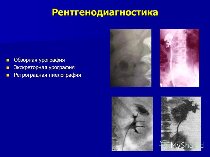 Рентгенодиагностика Обзорная урография Обзорная урография Экскреторная урография Экскреторная урография Ретроградная пиелография Ретроградная пиелография