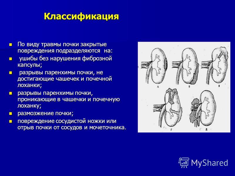 Классификация По виду травмы почки закрытые повреждения подразделяются на: По виду травмы почки закрытые повреждения подразделяются на: ушибы без нарушения фиброзной капсулы; ушибы без нарушения фиброзной капсулы; разрывы паренхимы почки, не достигаю