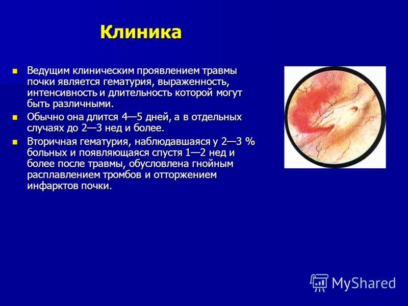 Клиника Ведущим клиническим проявлением травмы почки является гематурия, выраженность, интенсивность и длительность которой могут быть различными. Ведущим клиническим проявлением травмы почки является гематурия, выраженность, интенсивность и длительн