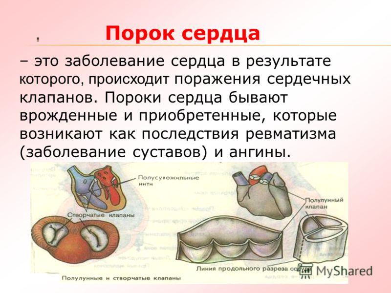 Порок сердца – это заболевание сердца в результате которого, происходит поражения сердечных клапанов. Пороки сердца бывают врожденные и приобретенные, которые возникают как последствия ревматизма (заболевание суставов) и ангины.