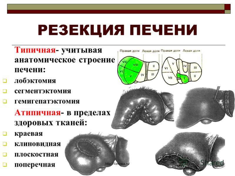 РЕЗЕКЦИЯ ПЕЧЕНИ Типичная- учитывая анатомическое строение печени: лобэктомия сегментэктомия гемигепатэктомия Атипичная- в пределах здоровых тканей: краевая клиновидная плоскостная поперечная http://4anosia.ru/