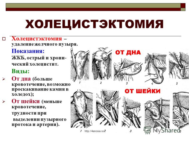 Холецистэктомия фото