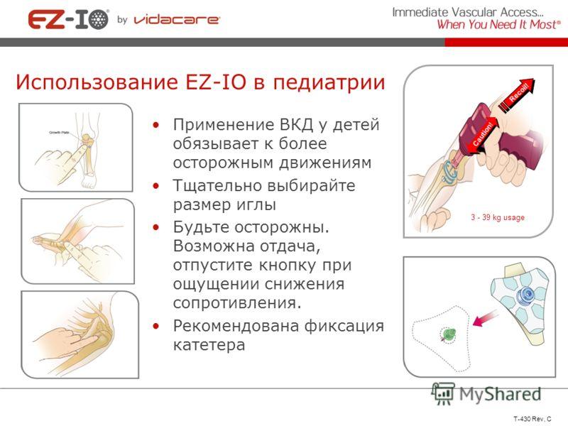 Использование EZ-IO в педиатрии Применение ВКД у детей обязывает к более осторожным движениям Тщательно выбирайте размер иглы Будьте осторожны. Возможна отдача, отпустите кнопку при ощущении снижения сопротивления. Рекомендована фиксация катетера Cau