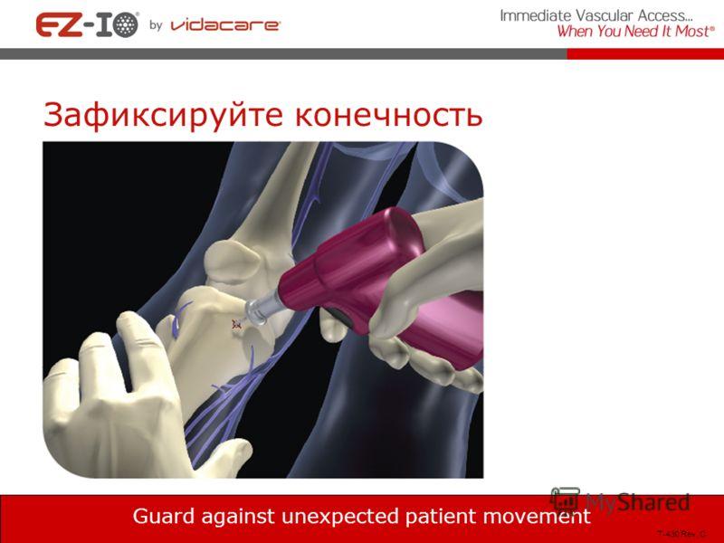 Зафиксируйте конечность Guard against unexpected patient movement T-430 Rev, C