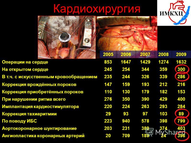 Кардиохирургия 20052006200720082009 Операции на сердце8531647142912741632 На открытом сердце245254344359300 В т.ч. с искусственным кровообращением235244326339286 Коррекция врождённых пороков147159193212216 Коррекция приобретённых пороков1101301791821